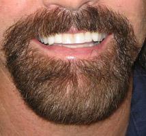 warren family dental