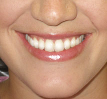 dentist in warren