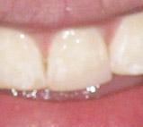 gentle dental warren mi