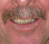 dentist sterling heights mi