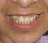 dentist Detroit