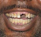 dentist troy mi